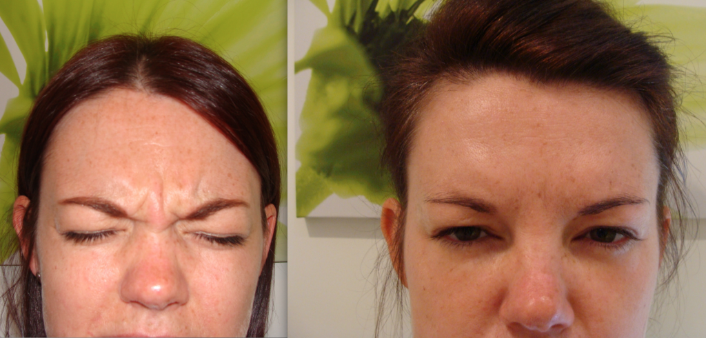 Botox Treatment Bournemouth 3