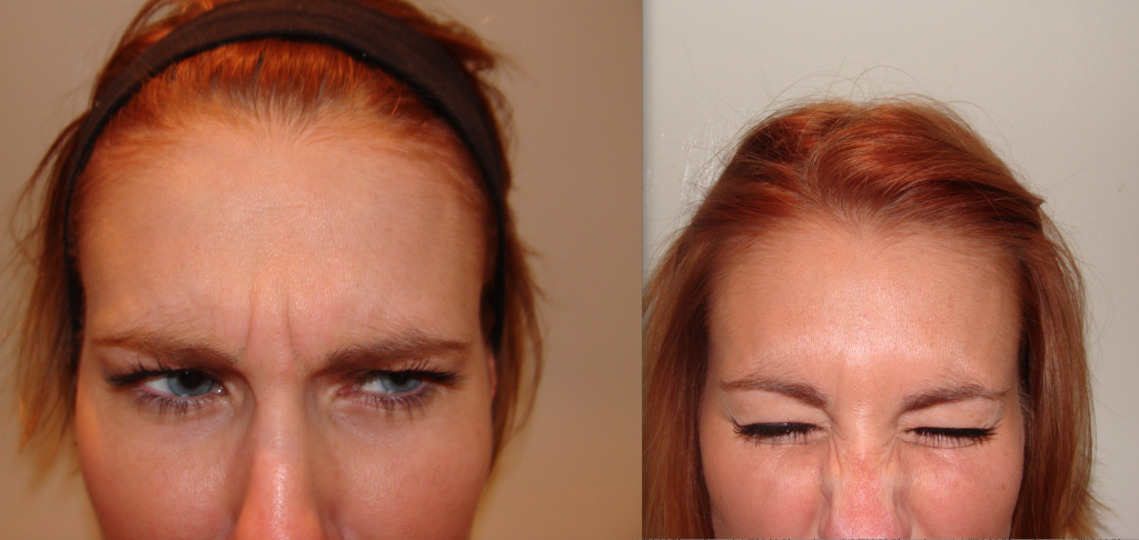 Botox Treatment Bournemouth 4