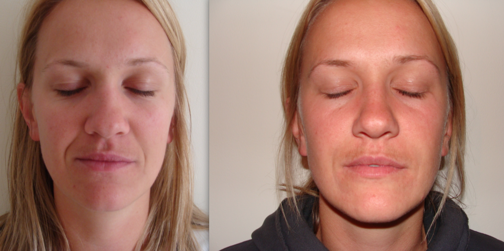 Dermal Fillers Bournemouth 1
