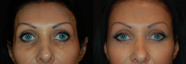 Dermal Fillers Bournemouth 2