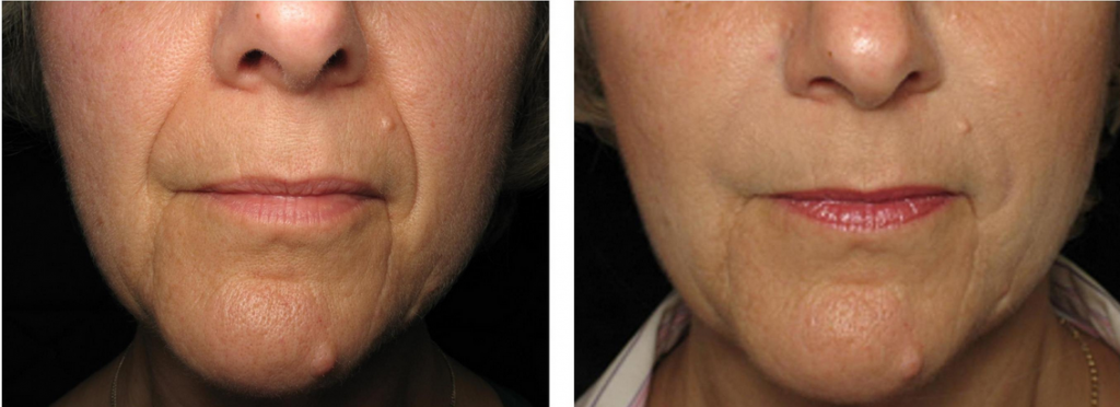Dermal Fillers Bournemouth 3