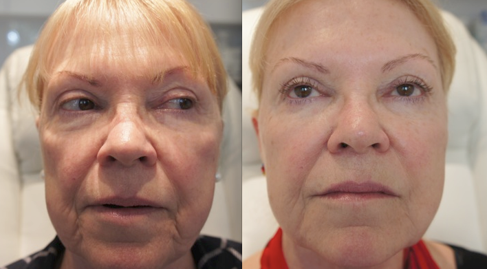 Dermal Fillers Bournemouth 4