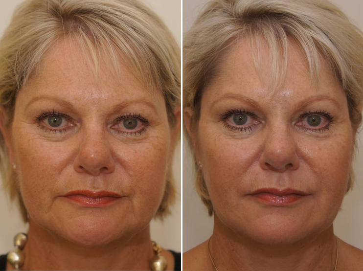 Non Surgical Liquid Facelift Bournemouth 1