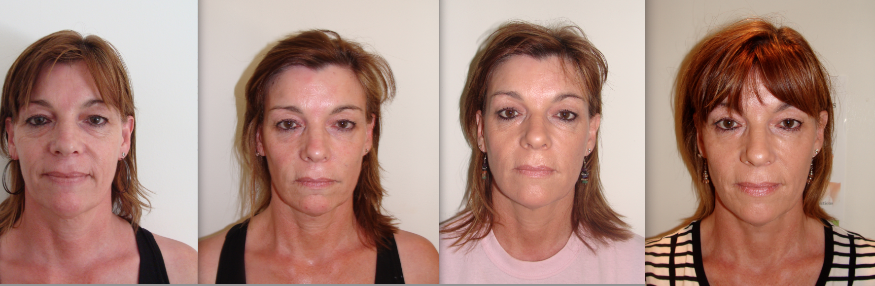 Liquid Non Surgical Facelifts   The Green Room Bournemouth