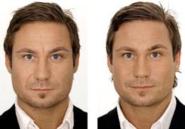 Mens Botox image 2