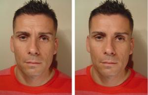 Mens Botox image 3