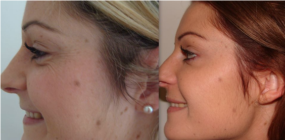 Botox Treatment Bournemouth 7