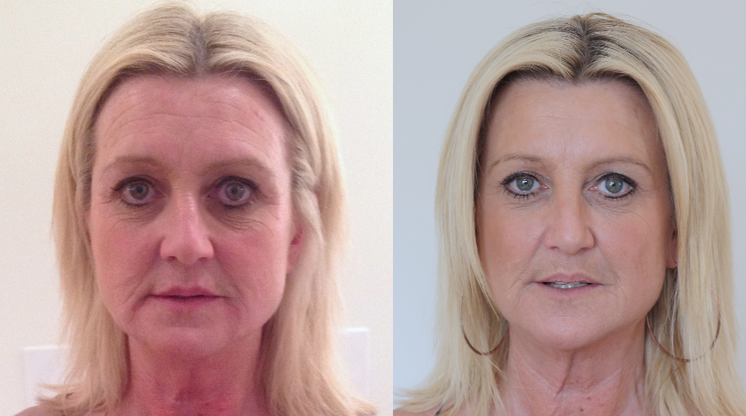 Non Surgical liquid Facelift 4