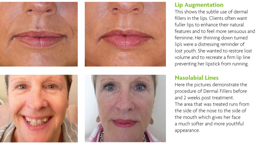 Dermal Fillers (Before and After)