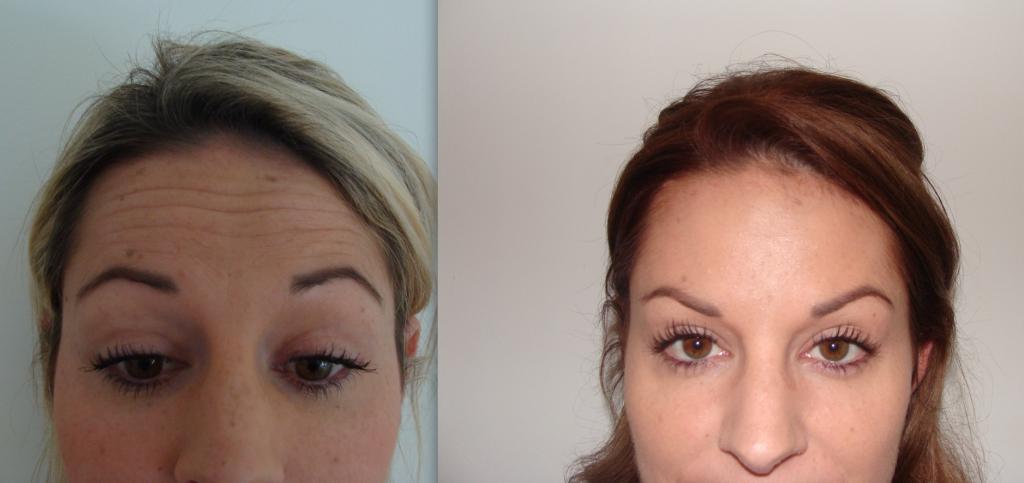Botox Treatment Bournemouth 2