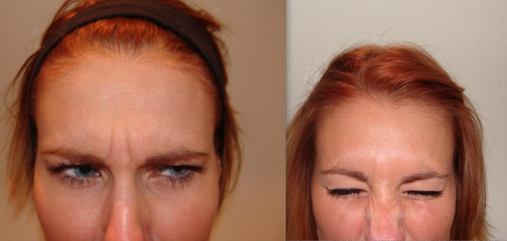 Botox Treatment Bournemouth 4