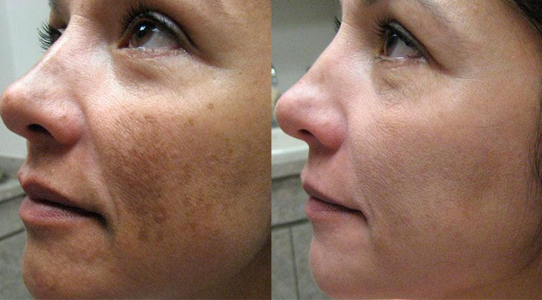 Chemical Skin Peel Bournemouth 4