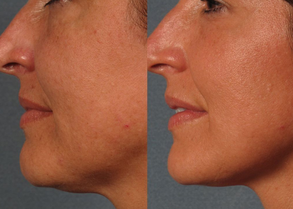 Chemical Skin Peel Bournemouth 5