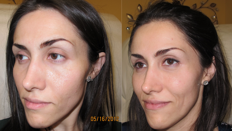 Non Surgical Liquid Facelift Bournemouth 2