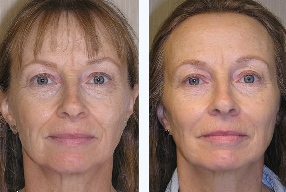 Non Surgical Liquid Facelift Bournemouth 3
