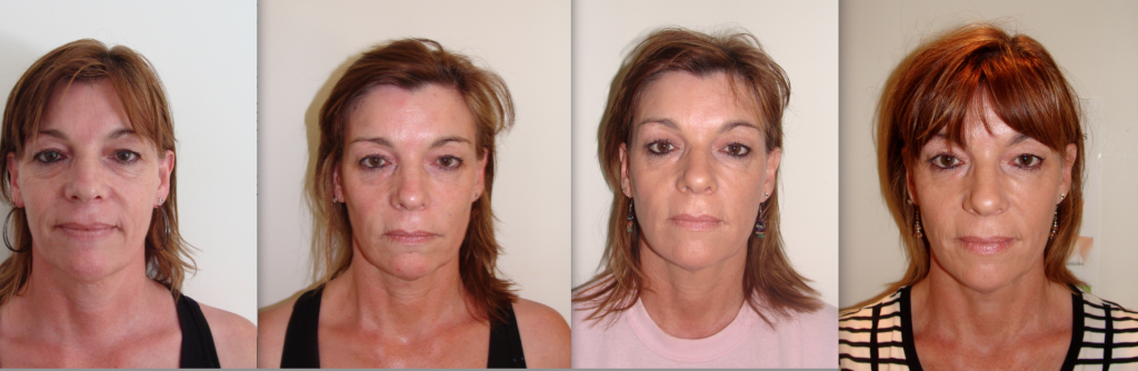 Non Surgical Liquid Facelift Bournemouth 5