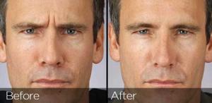 Mens Botox image 1