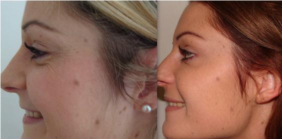 Botox Treatment Bournemouth 7