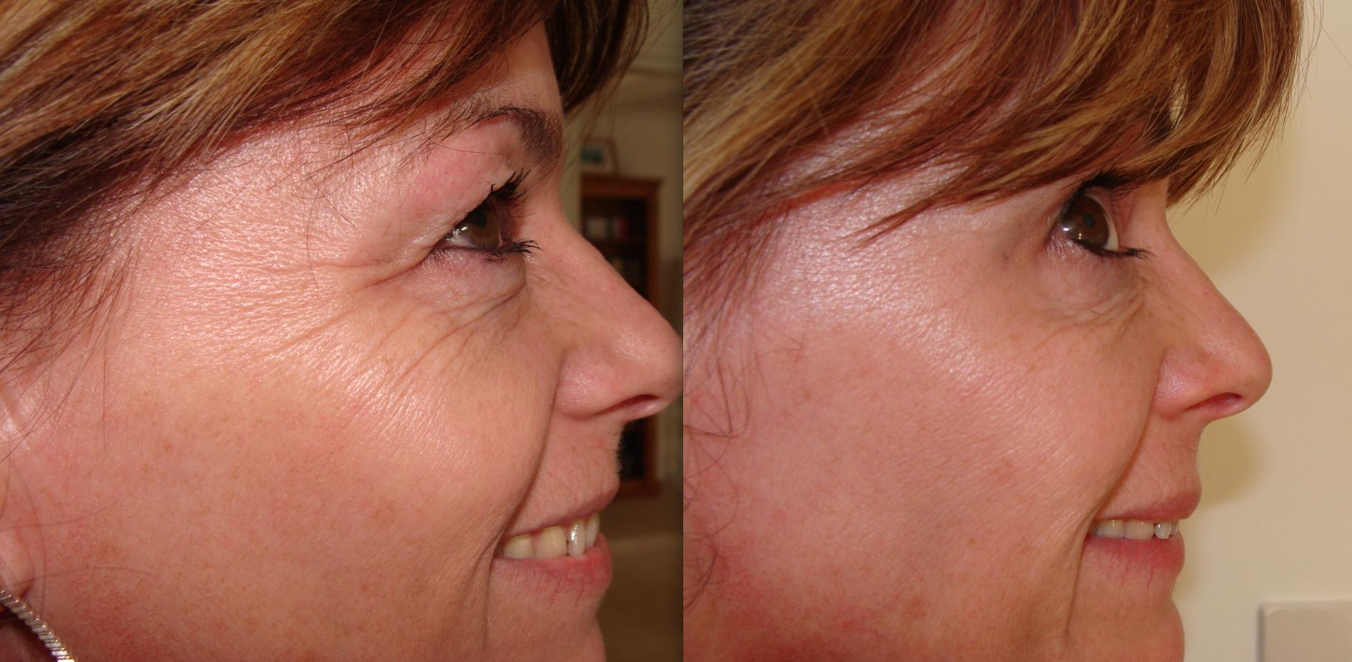Botox Treatment Bournemouth eyes