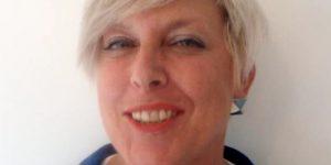 Cheek Enhancement (Dermal Filler) Testimonial - Hazel