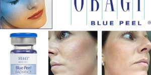 Blue Peel Radiance by Obagi